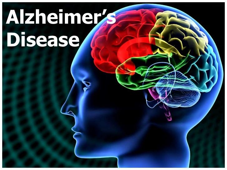 سیب الزائمر (دماغی بیماری) کو روکنے میں بھی معاون ہے